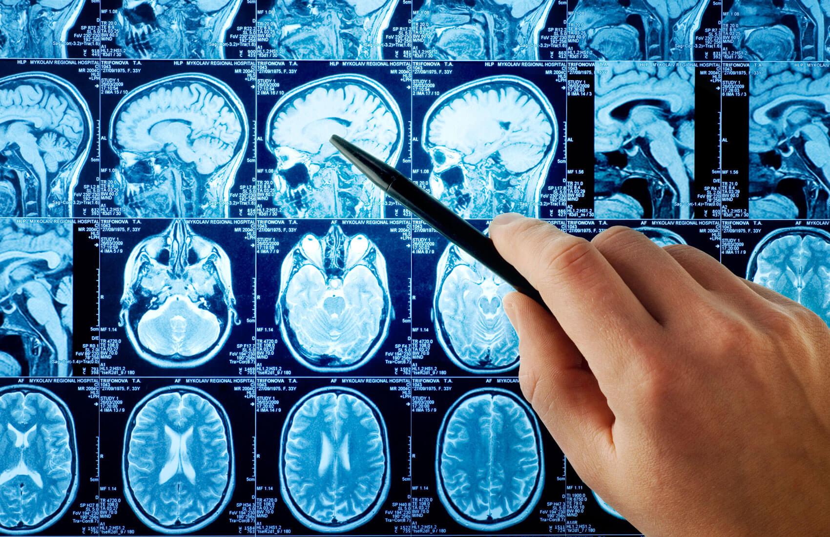 Как делают МРТ головного мозга с контрастированием?