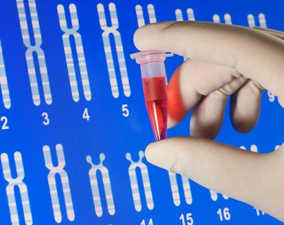 Креатинкиназа в крови повышена: почему и что делать?