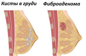 УЗИ позволяет найти причину и поставить правильный диагноз!