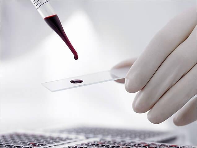 Общий анализ крови с лейкоцитарной формулой: расшифровка показателей