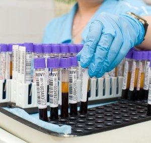 Анализ на TORCH-инфекции является обязательным при беременности!