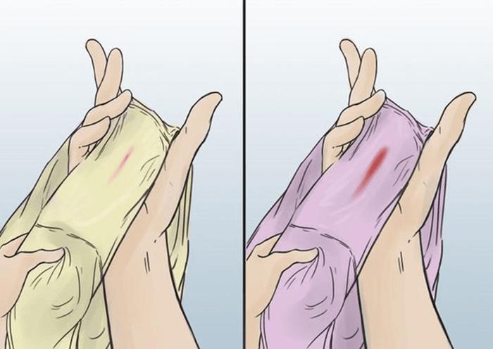 Кровяные выделения в середине цикла: причины и возможные заболевания