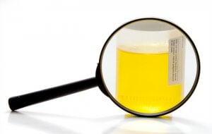 Что такое измененные эритроциты в моче
