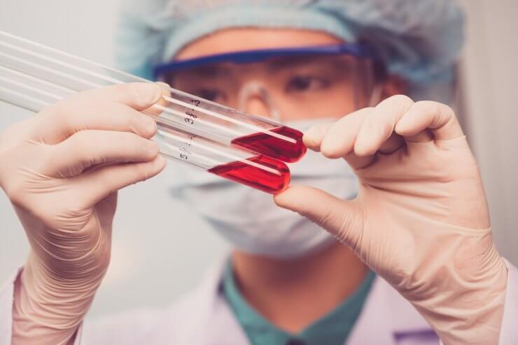 Почему так важно кровь на анализ сдавать утром натощак?