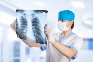 Рентген ребер и органов грудной клетки: все о диагностике