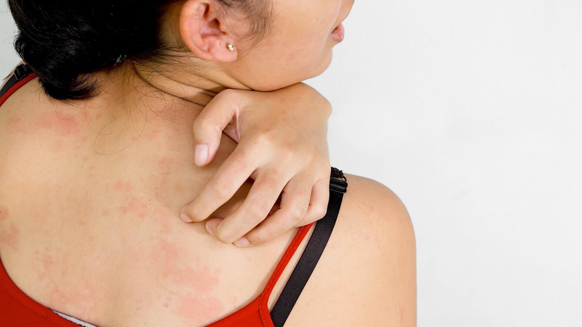 Аллергия и ее диагностика: анализ крови и кожное тестирование