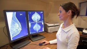 С помощью маммографии можно выявить опухоли, кисты и кальцинаты в молочных железах