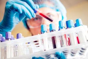 Диагностика, обозначение и нормы тромбоцитов в крови по возрасту