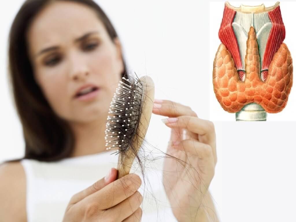 Щитовидная железа и выпадение волос: причины, лечение, последствия