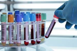 Липаза в крови повышена — что это значит?
