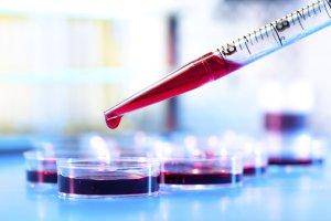 Каким должно быть нормальное количество тромбоцитов в анализе крови?