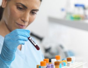 Анализ крови на онкомаркеры поможет определить наличие или отсутствие опухоли
