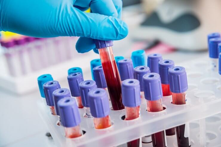 Лимфоциты норма у мужчин по возрасту таблица