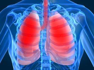 Пневмония может быть очаговая, долевая, сегментарная и тотальная