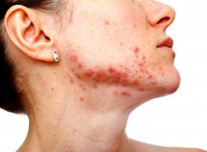 Бактерия вызывает гнойные и воспалительные заболевания не только на коже, но и на органах и слизистых оболочках