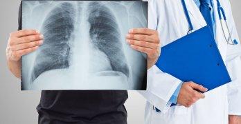 Флюорография – это рентгенологический метод обследования органов грудной клетки