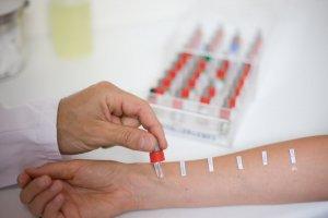Аллергия на запахи может быть диагностирована после проведения аллергопроб