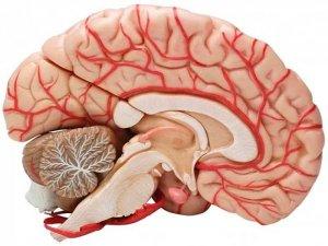 Дисгенезия мозолистого тела: диагностика, лечение и последствия