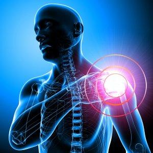 Изображение - Асептический некроз головки плечевого сустава 3-10-300x300