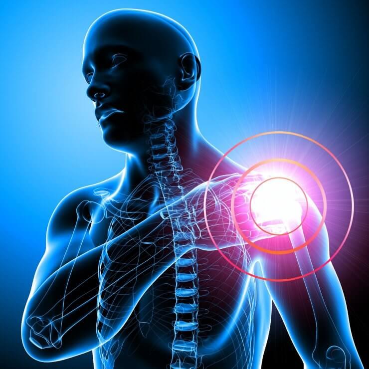 Асептический некроз плечевого сустава симптомы и лечение