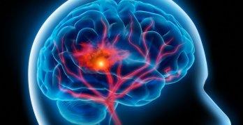 Геморрагический инсульт – это кровоизлияние в головной мозг в результате разрыва сосудов