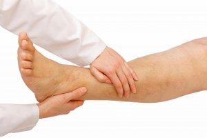 Чем опасно и как лечится варикозное расширение вен на ногах?