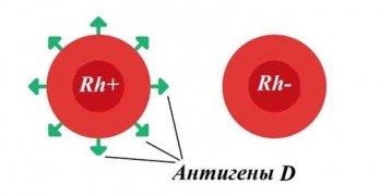 Резус фактор – это белок (антиген), который находиться на поверхности эритроцитов