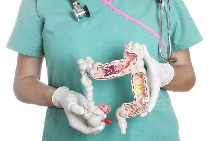 Колоректальный рак – это опасное злокачественное заболевание