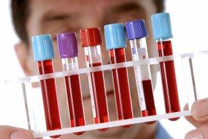 Атипичные мононуклеары в крови — норма и причины повышения вироцитов
