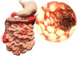 Болезнь Крона может спровоцировать развитие колоректального рака
