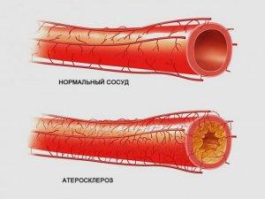 Высокий уровень холестерина может стать причиной атеросклероза