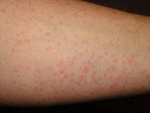 Вариант холодовой аллергии