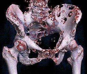 Метастазы в кости таза