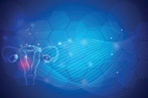 Синдром поликистозных яичников (СПКЯ): причины, симптомы, диагностика и лечение