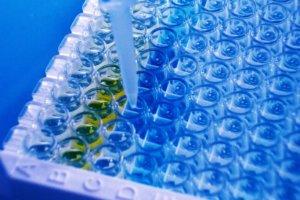 Анализ на серотонин — зачем назначается, интерпретация результатов