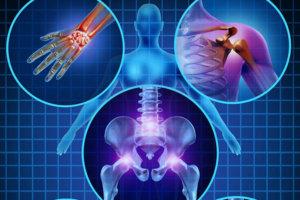 Диагностика псориатического артрита – критерии, позволяющие отличить его от других артритов