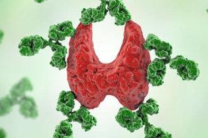 Лабораторная диагностика тиреоидита Хашимото (аутоиммунного тиреоидита)