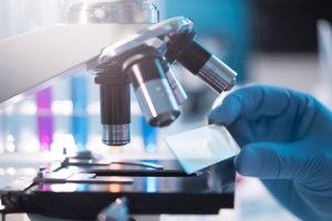 Анализ асцитической (перитонеальной) жидкости: показания и расшифровка результатов