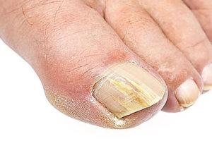 Как диагностируется и лечится грибковое поражение ногтей (дерматофитный онихомикоз)
