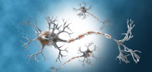 Синдром Гийена-Барре и прогноз
