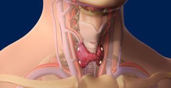Гиперпаратиреоидизм (гиперпаратиреоз) — как диагностируется и лечится заболевание?